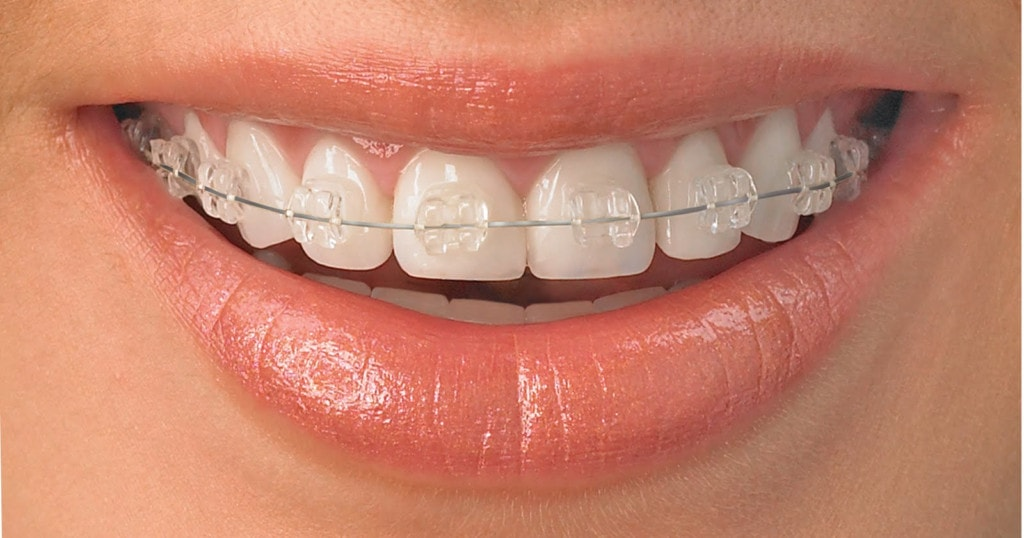 7 tips for living with dental braces solutioingenieria Images