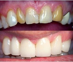 improving aesthetics with porcelain crowns before and after