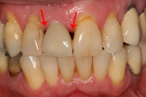 dental implant complications : black triangles