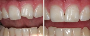 bonding is used to improve the appearance of a chipped tooth