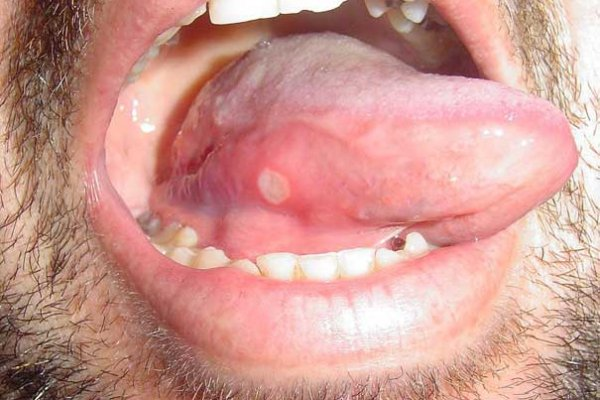 red spots on tongue treatment