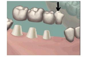 Cantilever Bridge With 3 Abutment Teeth