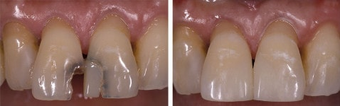 composite fillings on front teeth