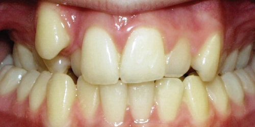 4 proven ways to straighten crooked or misaligned teeth