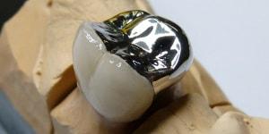 150 Degrees Celsius To Fahrenheit >> Dental acrylic in dentistry. Acrylic restorations