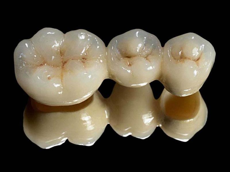 Image result for dental bridge