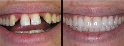 restoring aesthetics with a porcelain dental bridge before and after