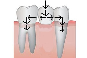 dental bridge: chewing forces transmission if 1 pontic