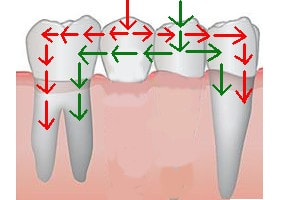 dental bridge: chewing forces transmission if 2 pontics