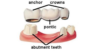 dental_bridge_structure