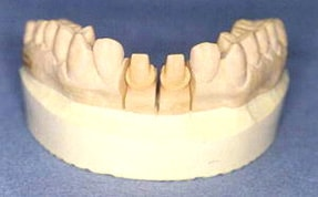 dental cast prepared teeth