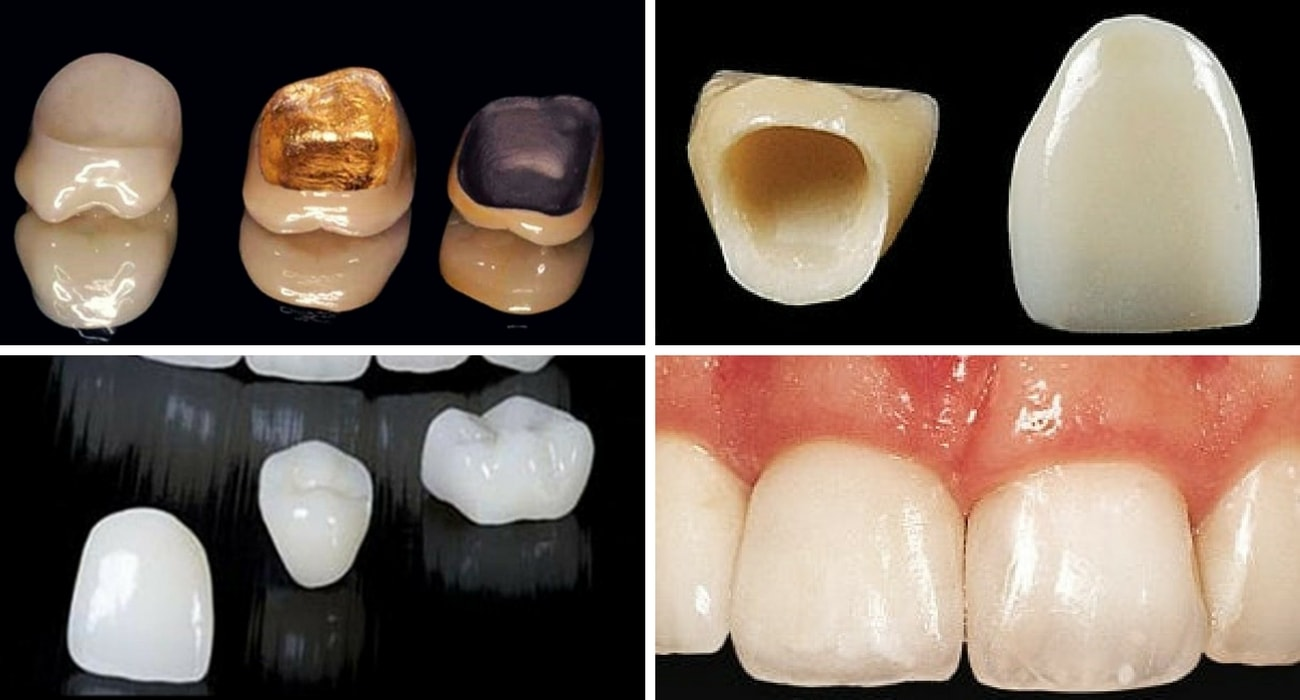 What is the Typical Cost of a Dental Crown?