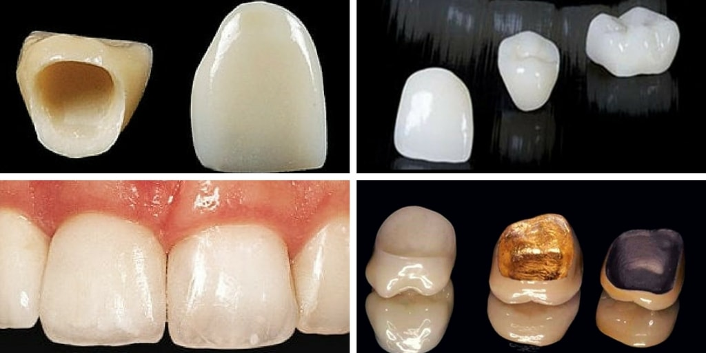 Porcelain Crowns Cost Front Teeth In India - TeethWalls