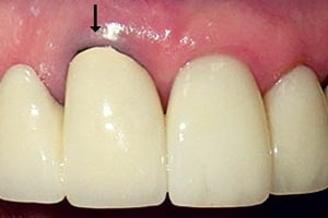 5 Possible Risks With Dental Crowns And Bridges