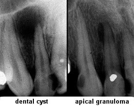 chronic apical periodontitis : dental cyst and apical granuloma