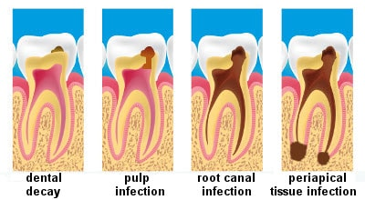 dental decay progression in the periapical tissue