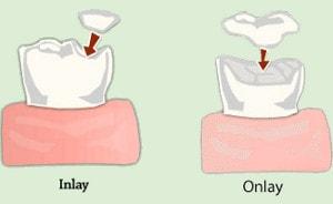 Dental inlay, dental onlay vs filling