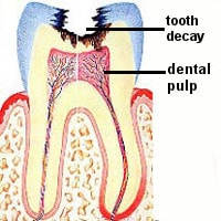 dental pulp infection