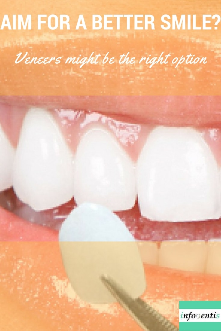 Veneers are an important tool for the cosmetic dentist. A dentist may use one veneer to restore a single tooth that may have been fractured or discolored, or multiple veneers to create a type of makeover. You've probably heard about dental veneers but how exactly are they manufactured? Find out about the procedure, indications, care and risks