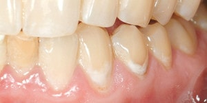 early caries lesion