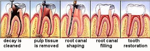 endodontik tedavi