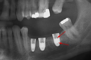 dental implant complications : fracture of the abutment screws