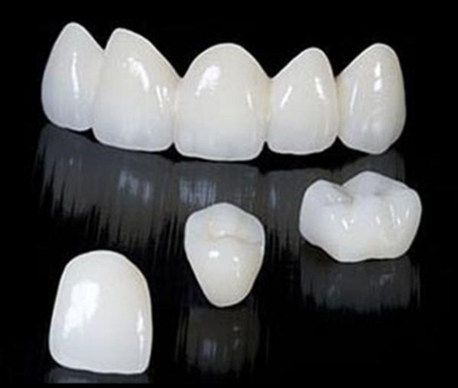Image result for dental bridge zirconia