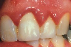 Treating implant gingivitis, Fig. 2, Rebekah A. Florez, RDH
