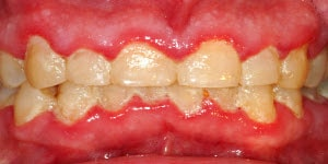 gingivitis caused by dental plaque build up