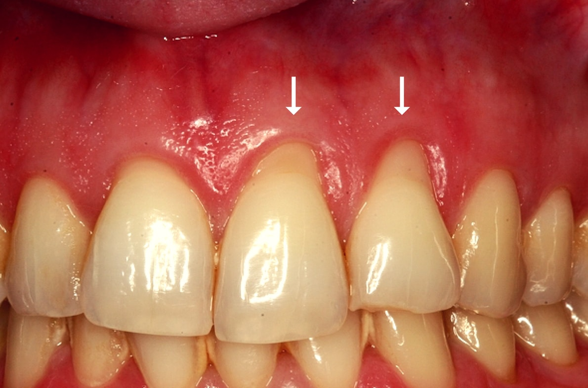 Watch IfYou Have Receding OrUnhealthy Gums, Here Are Proven Solutions video