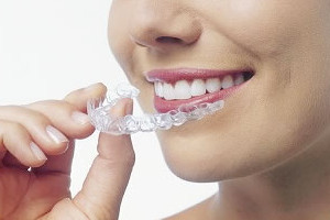 home teeth whitening kit: bleaching gel is placed in a tray