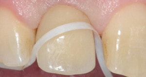dental implant care : implant supported crown flossing