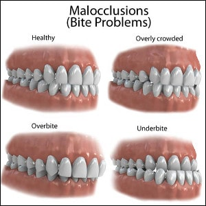 physical examination : malocclusions