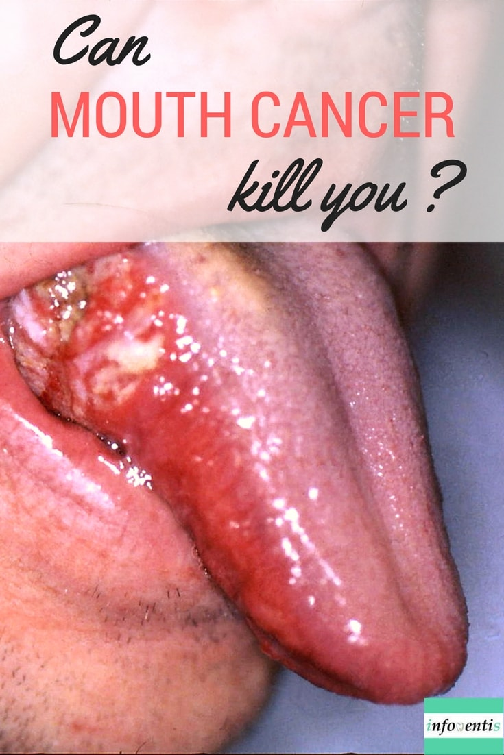 Mouth Cancer Affects Thousands Of People Every Year. Learn What Can Cause Mouth  Cancer And