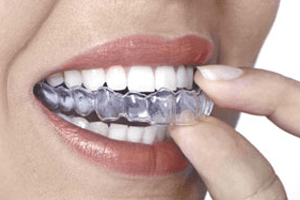 mouth guard for teeth grinding inside the mouth