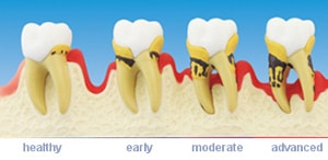 progression of periodontitis