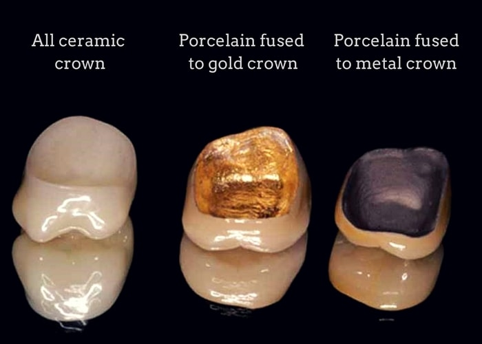 What Is The Typical Cost Of A Dental Crown