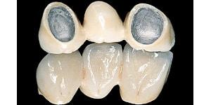 Porcelain Crowns And Porcelain Dental Restorations