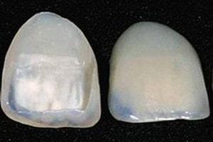 Composite Veneers Vs Porcelain Veneers