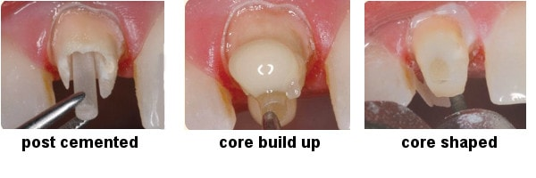 Prefabricated Post And Core Procedure