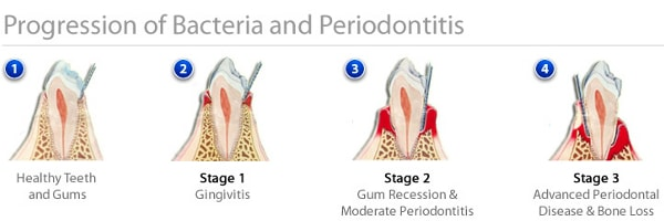 progression of periodontal disease