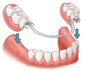 部分的な歯の写真