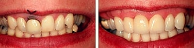 tooth bridge indication: replacement of old, unsightly restorations