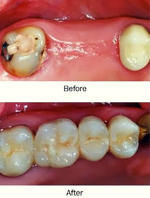 restoring a 2 teeth toothless gap with a dental bridge