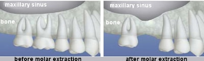 Image result for treatment for bone loss in teeth