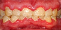 physical examination : swollen gums