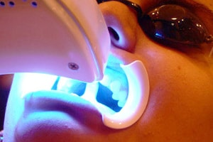 in office teeth whitening procedure step 2