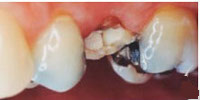 tooth bridge indication: teeth with destructions and old fillings