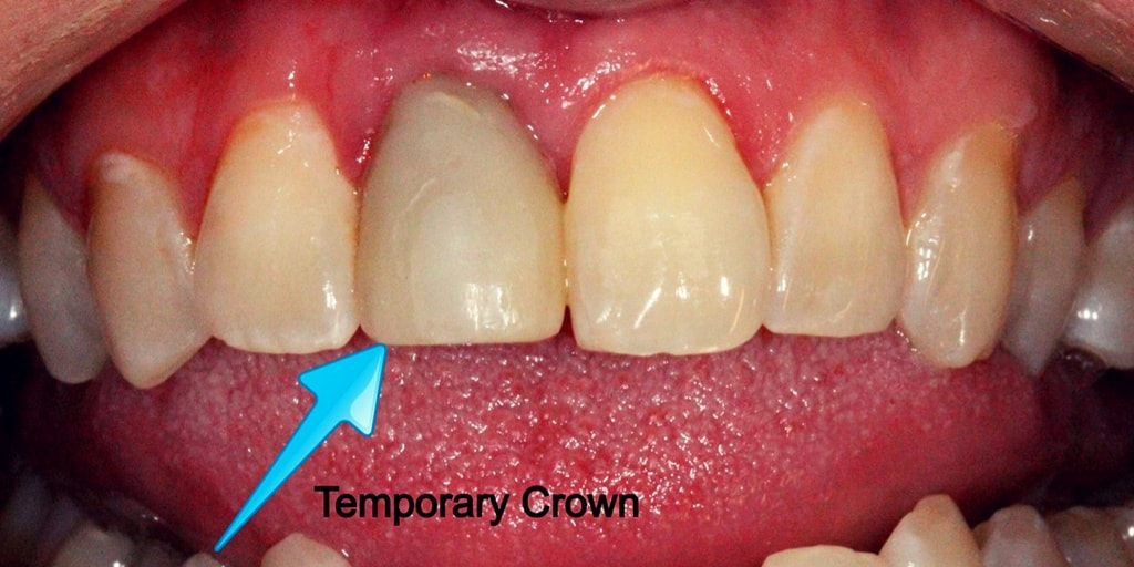 Cure Tooth Decay  Stop treat and reverse dental cavities