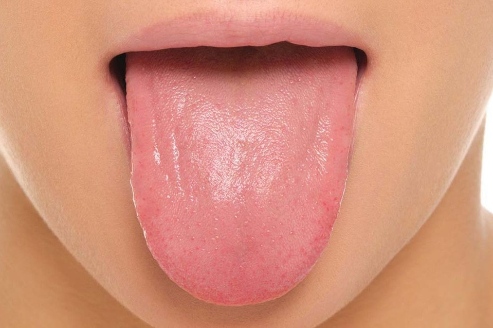 15 Common Tongue Diseases That Can Affect You
